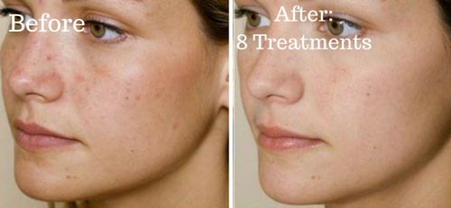 acne befoer and after
