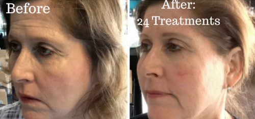 full face before and after 5