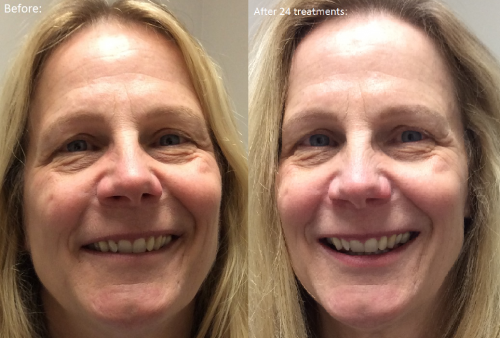 SV smiling before and after
